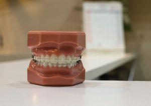 Tandhälsan är viktig